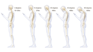 bad-posture-620w-from-CBS-News