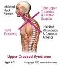 upper-crossed-syndrome-e1360438970523