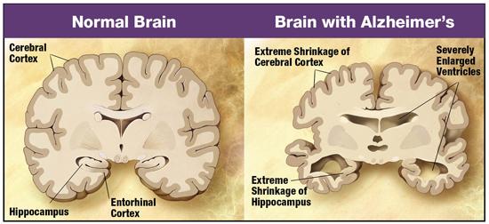 brain-w550