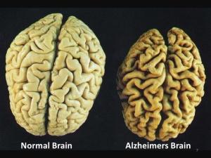 normal-vs-alzheimers-brain